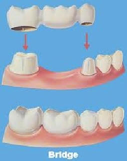 Image of a Dental Bridge on teeth