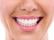 Teeth Whitening Woman Smiling