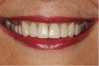 cosmetic-dentistry-case-study-after