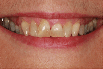 cosmetic-dentistry-case-study