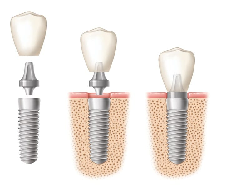 Implant Single Tooth