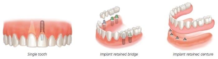 dental_implants_scenarios