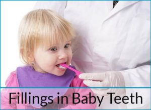 fillings in baby teeth
