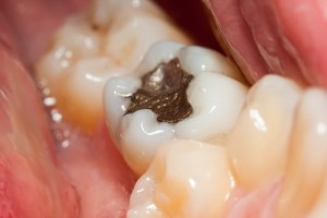 Picture of toothi with Amalgam Fillings