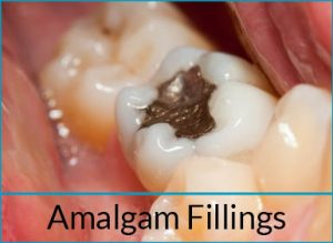 cosmetic-dentistry-problems-amalgam-fillings