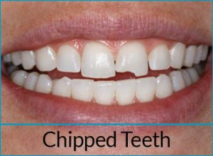 cosmetic-dentistry-problems-chipped-teeth