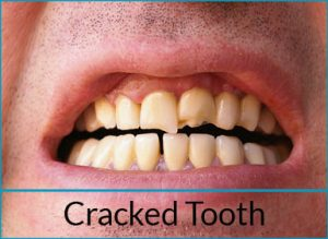 cosmetic-dentistry-problems-cracked-tooth