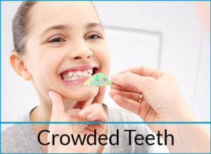 cosmetic-dentistry-problems-crowded-teeth