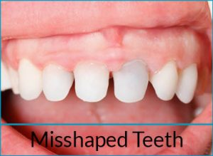 cosmetic-dentistry-problems-misshaped-teeth