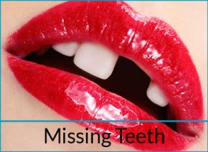 cosmetic-dentistry-problems-missing-teeth