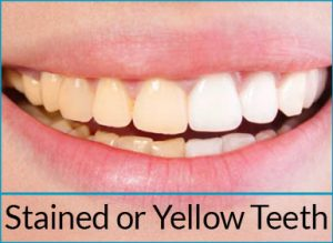 cosmetic-dentistry-problems-yellow-teeth