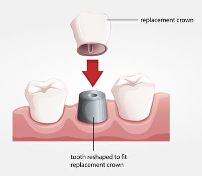 Solution Dental Crown
