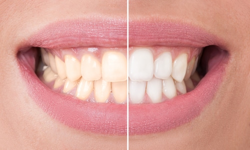 Phillips Zoom Teeth Whitening In Chair Professional Tooth Whitening