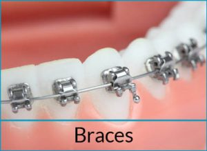cosmetic-dentistry-solutions-braces