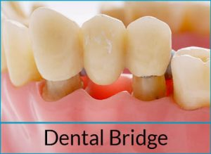 cosmetic-dentistry-solutions-dental-bridge