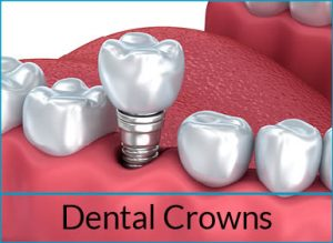 cosmetic-dentistry-solutions-dental-crowns