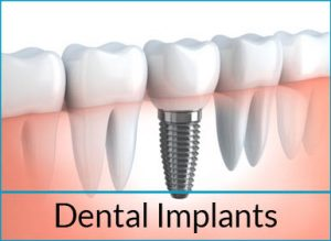 cosmetic-dentistry-solutions-dental-implants