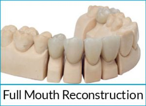 cosmetic-dentistry-solutions-full-mouth-reconstruction
