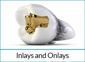 cosmetic-dentistry-solutions-inlays-onlays