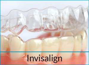 cosmetic-dentistry-solutions-invisalign