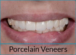 cosmetic-dentistry-solutions-porcelain-veneers
