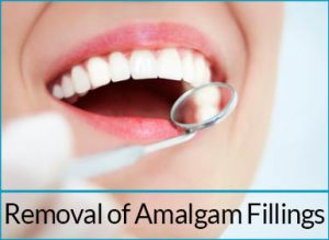 cosmetic-dentistry-solutions-removal-amalgam-fillings