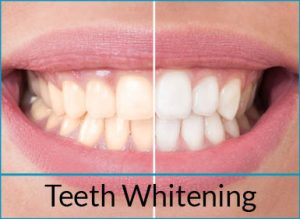 cosmetic-dentistry-solutions-teeth-whitening