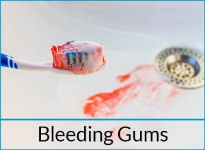 general-dentistry-problems-bleeding-gums