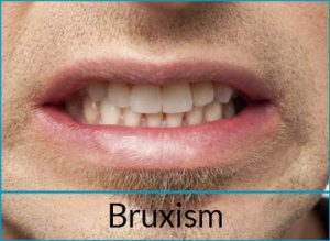 general-dentistry-problems-bruxism