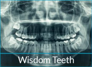 general-dentistry-problems-wisdom-teeth