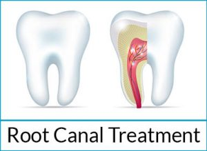 general-dentistry-solutions-root-canal-treatment