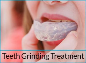 general-dentistry-solutions-teeth-grinding-treatment