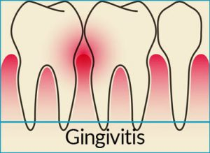 gum-disease-treatment-problems-gingivitis