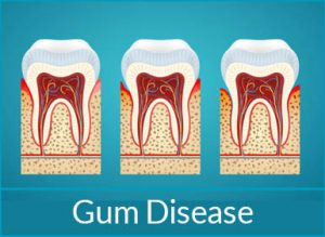 gum-disease-treatment-problems-gum-disease