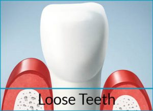gum-disease-treatment-problems-loose-teeth