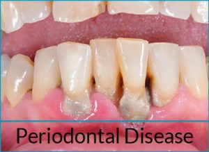 gum-disease-treatment-problems-periodontal-disease