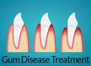 gum-disease-treatment-solutions-gum-disease-treatment