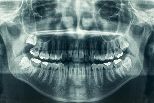 OPG image Wisdom Teeth
