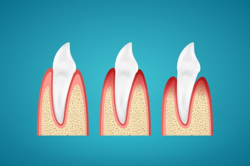 Gum disease stages on tooth