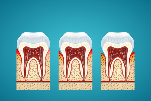 Gum Disease Treatment Melbourne - Treat Your Periodontal Disease