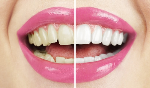 Tips for whiter teeth before and after - woman smiling