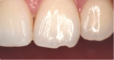 chipped tooth repair before