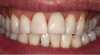 dental implants case study after
