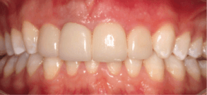 invisalign-veneers-after