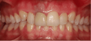 invisalign-veneers-before
