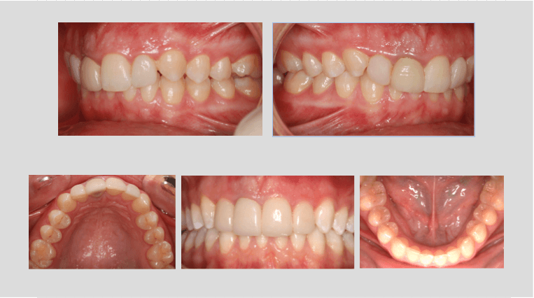 invisalign veneers before after
