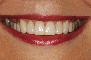 jane after cosmetic dentistry treatment