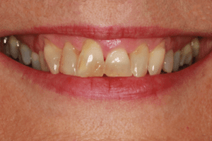 jane before cosmetic dentistry treatment