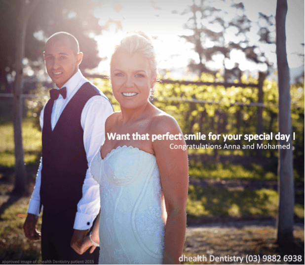 Anna Composite Veneers Wedding