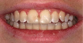 Composite Veneers Before